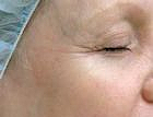 wrinkle-reduction-4-after