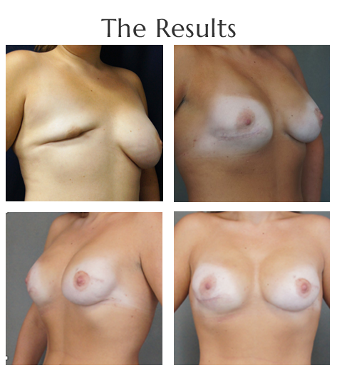 breast-reconstruction-4