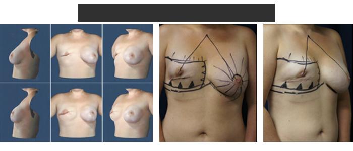 breast-reconstruction-planning