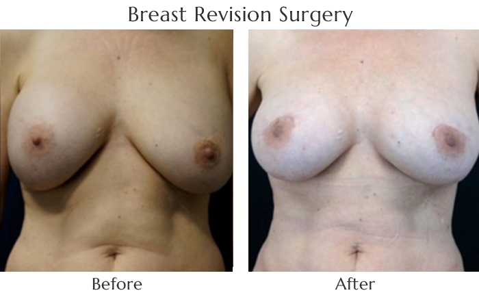 breast-revision-before-and-after-3