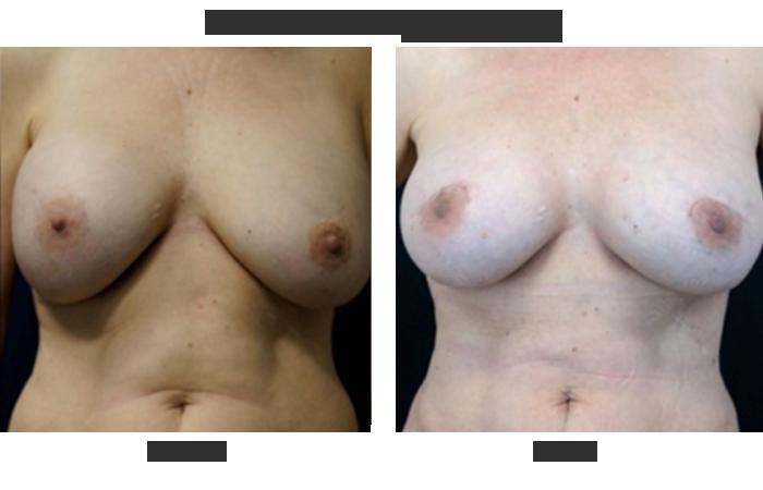 Breast surgeons oncology nj