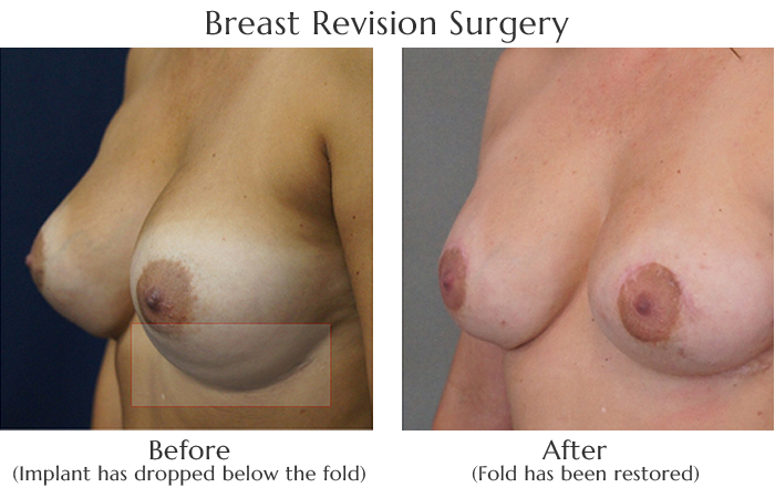 Breast Revision by Dr. Lewis J. Obi