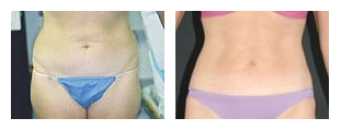 SlimLipo Laser Liposuction Specials at Obi Plastic Surgery