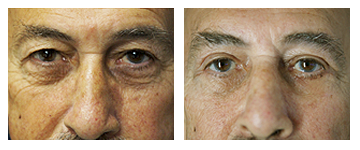 Eyelid Surgery for Men at Obi Plastic Surgery in Jacksonville