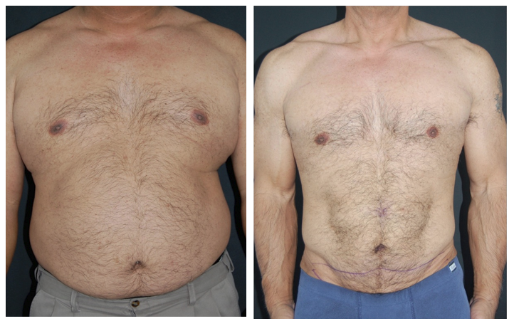 tummy tuck after weight loss photoshop