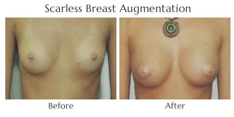 Scarless Breast Augmentation