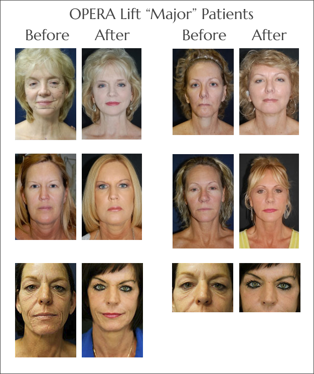 The OperaLift Non Surgical Face Lift at Obi Plastic Surgery