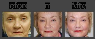 Fat Transfer For Facial Rejuvenation