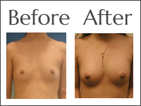 Fat Transfer In Jacksonville Get Lasting Results At Obi Plastic Surgery