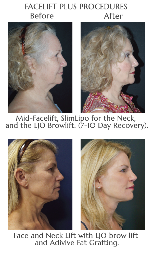 Facelift before and after at Obi Plastic Surgery