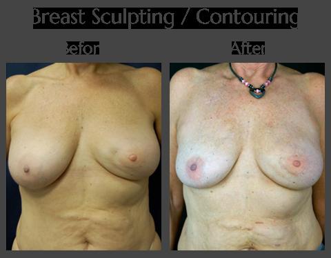 Scarless Laser Breast Sculpting in Jacksonville