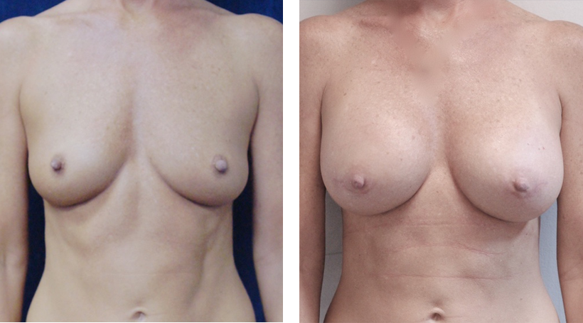 Gummy Bear Breast Augmentation in Jacksonville, FL by Dr. Lewis J. Obi