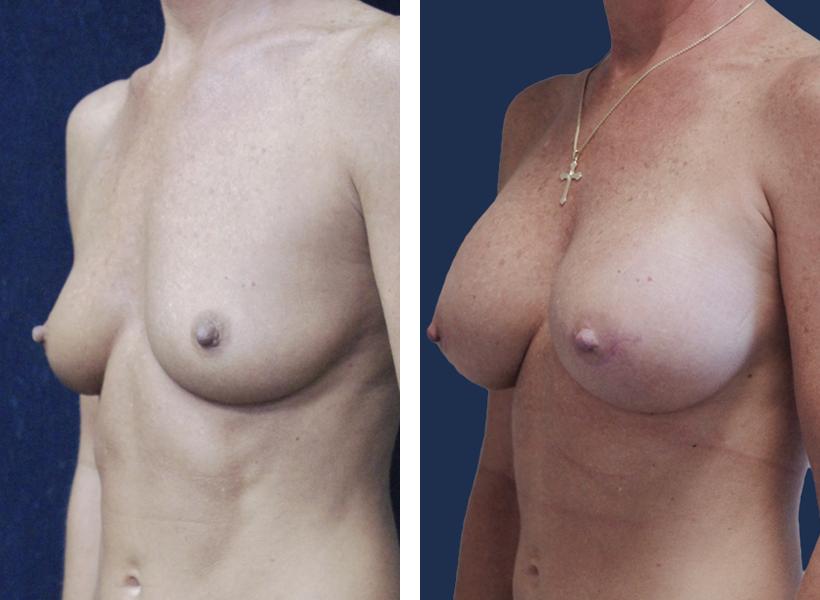 Gummy Bear Breast Augmentation in Jacksonville, FL by Dr. Lewis J. Obi