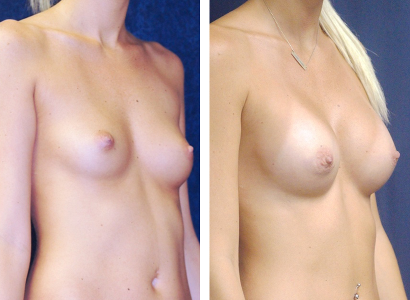 Breast Augmentation by Dr. Lewis J. Obi in Jacksonville