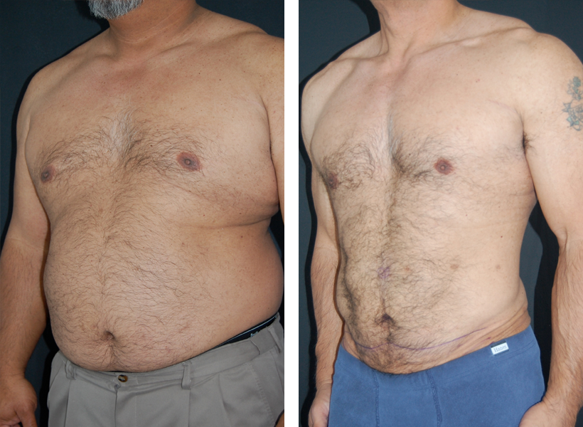 SlimLipo Laser Lipo Before & After Photo