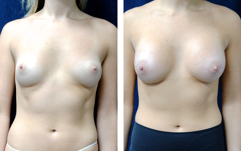 Gel Breast Implants