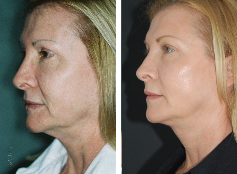 Mini Facelift with Fat Transfer