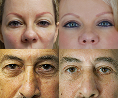 Eyelid Surgery Before and After Images