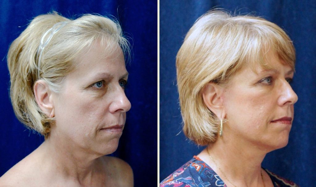 SlimLipo Laser Neck Lift