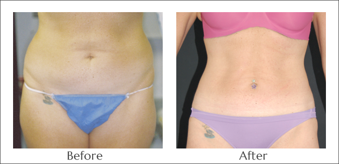 SlimLipo for the Abdomen and Sides