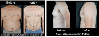 slimlipo male patient before and after
