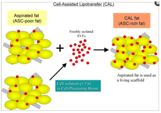 cell-assisted lipotransfer