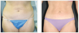 slimlipo before and after