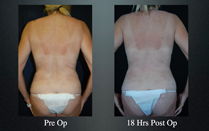 slimlipo before and after back