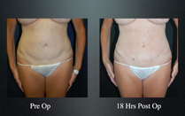 slimlipo before and after front